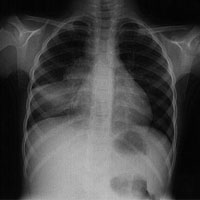 Chest X-Ray of Tuberculosis Patient file photo