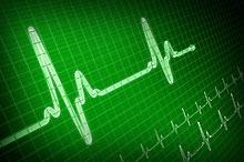 Stylized EEG Image Showing Heartbeat Pulse